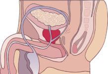 Povečana prostata