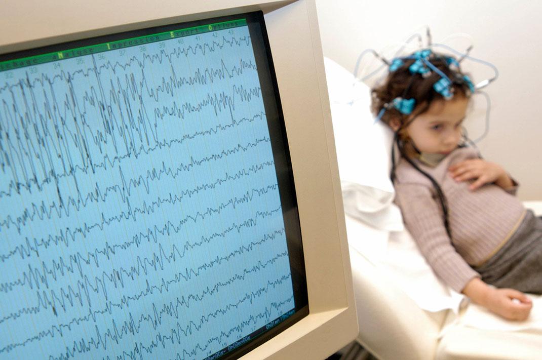 Epilepsija in otroci