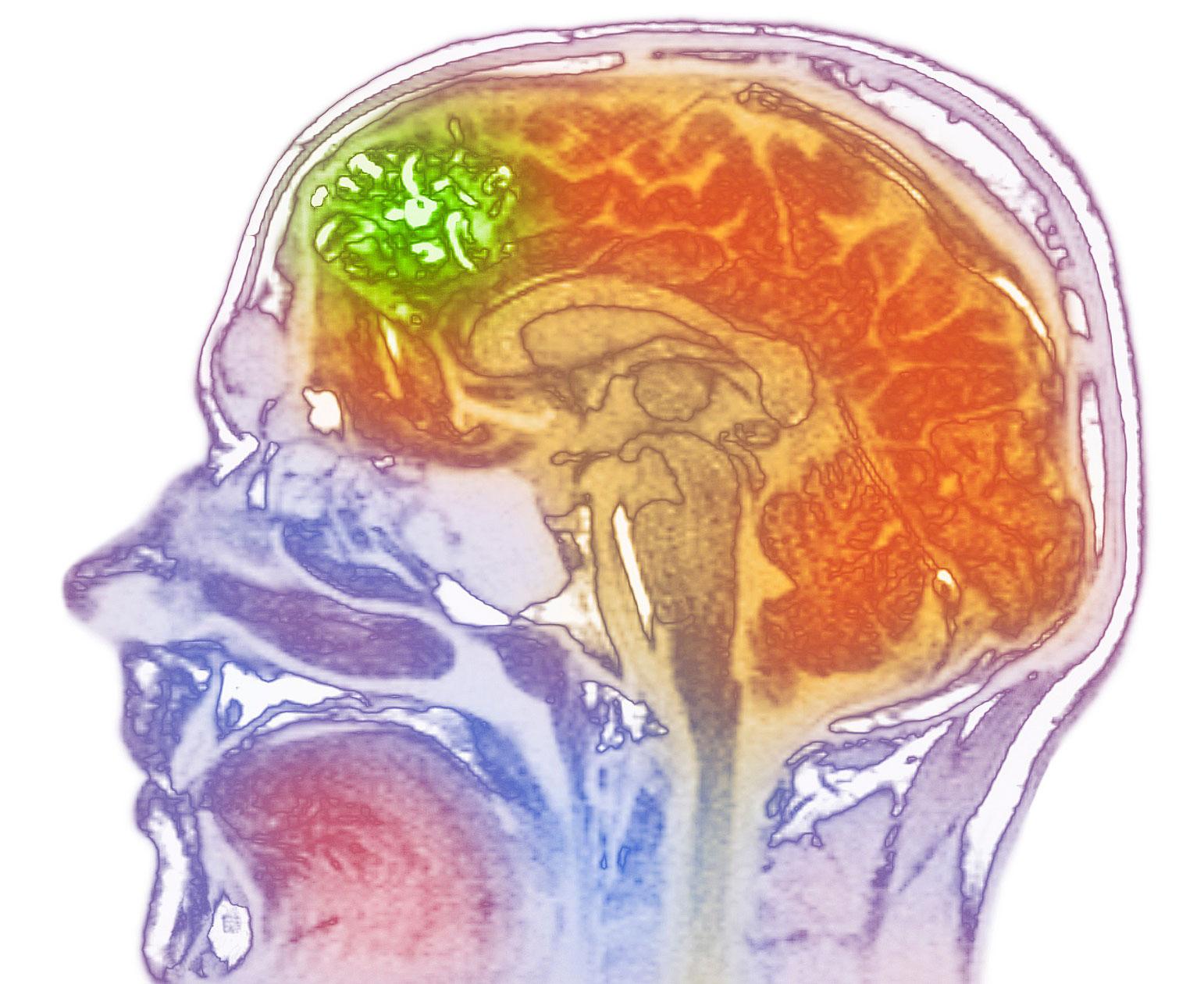 Epilepsija - simptomi in zdravljenje