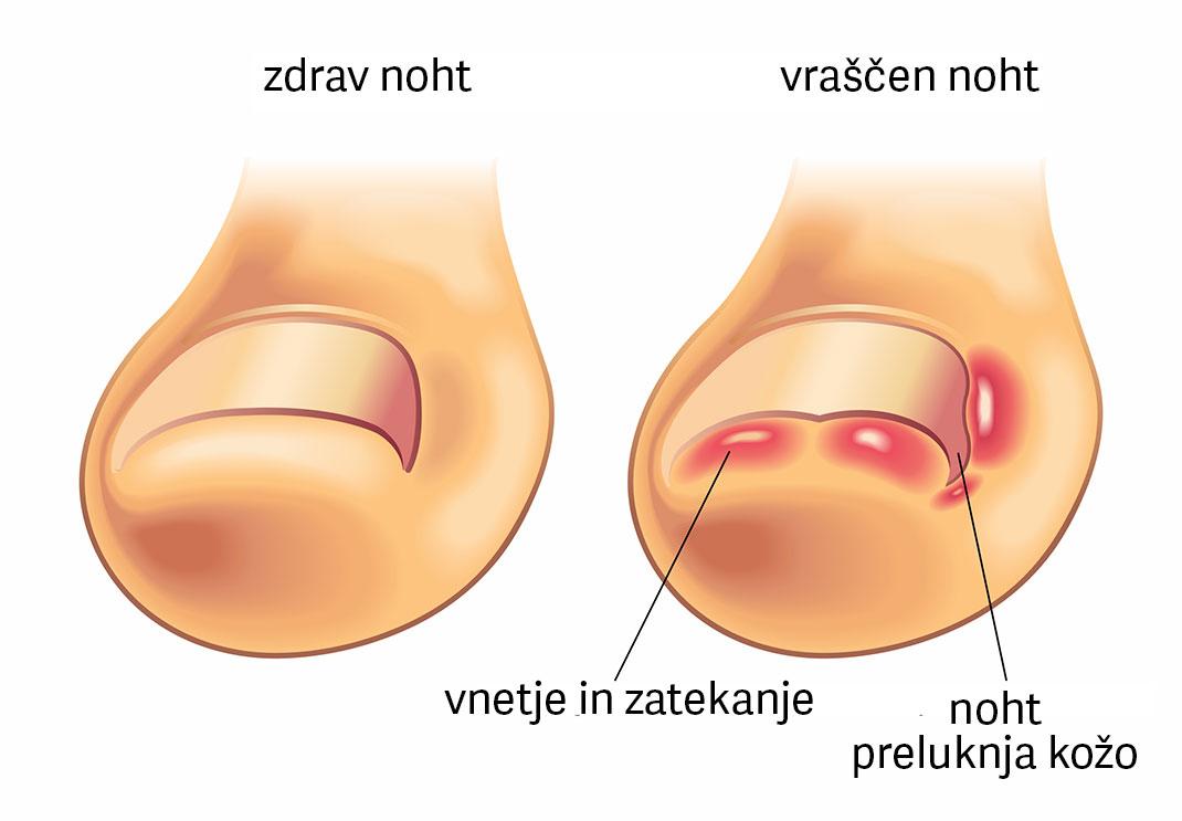 Vraščeni nohti