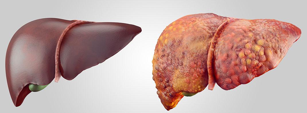 Hepatitis jetra