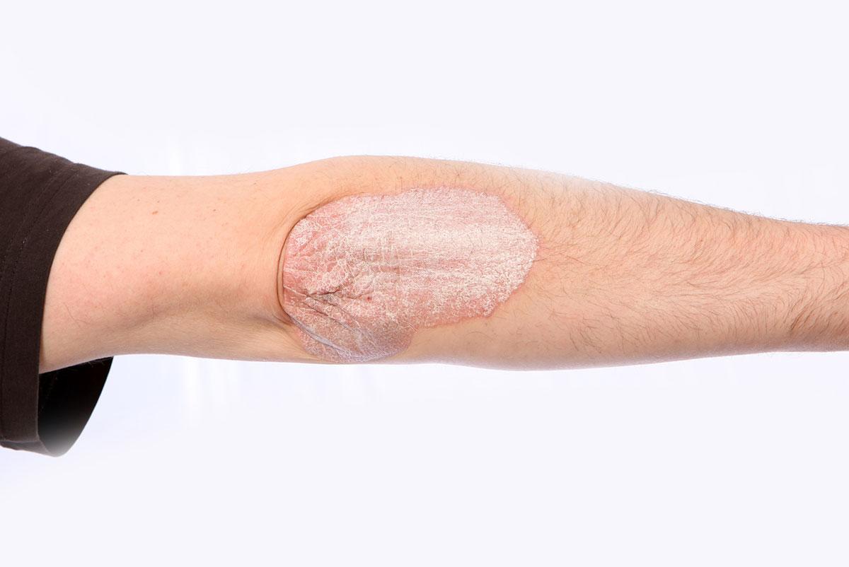 Psoriatični artritis