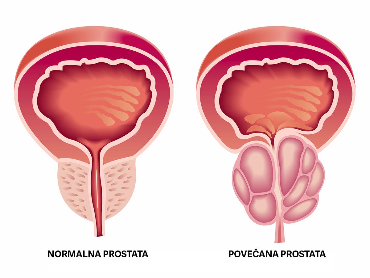 rak prostate, povečana prostata