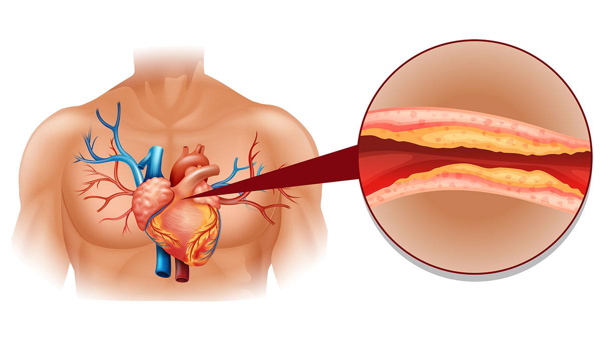 Rezultat iskanja slik za holesterol