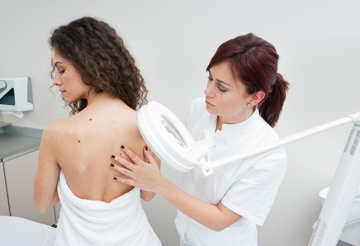 Kožni rak ali melanom