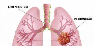 Pljučni rak