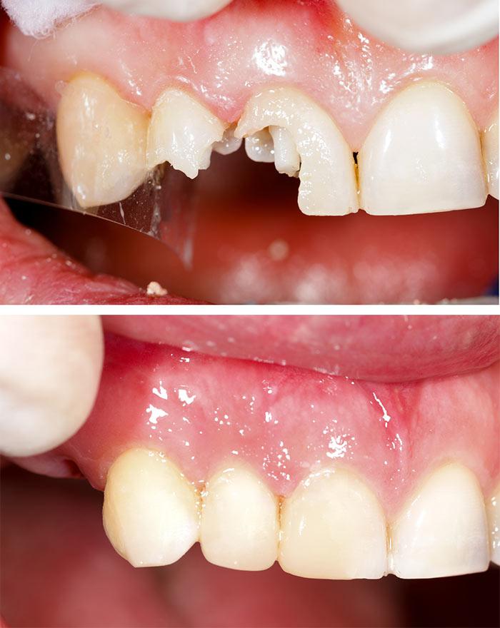 Zobje in zdravje