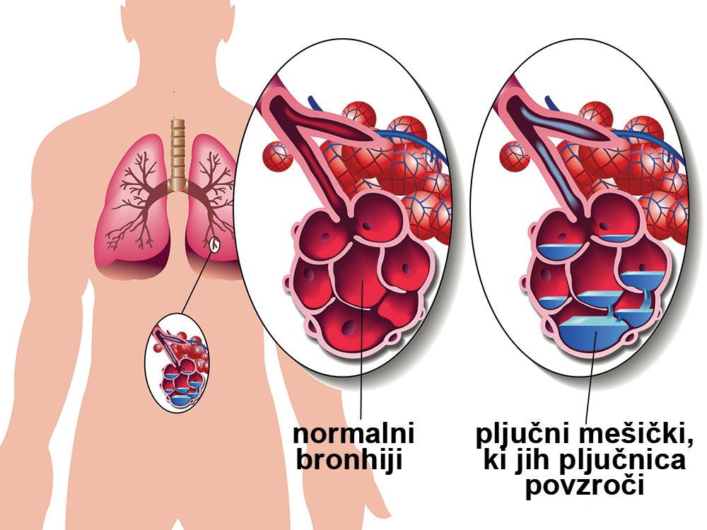 Atipična pljučnica simptomi in posledice