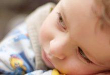 Okužbe otroške kože