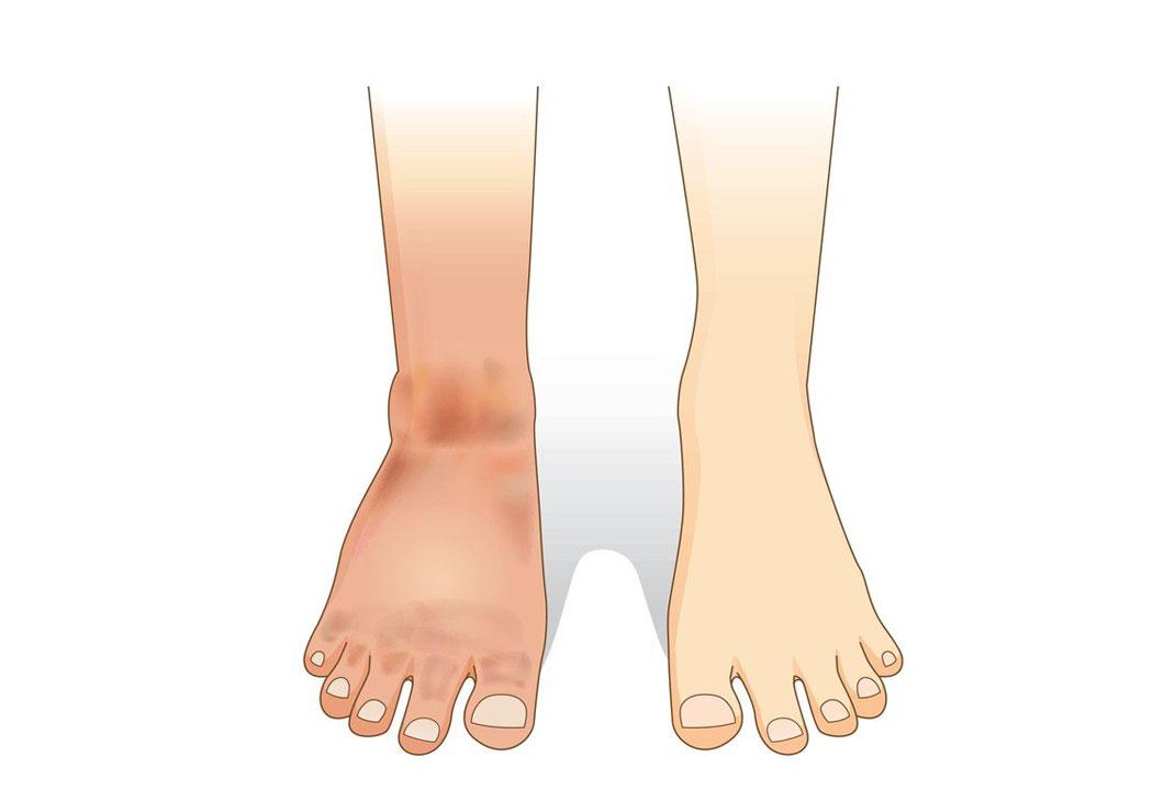 Otekle noge