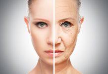 Staranje kože
