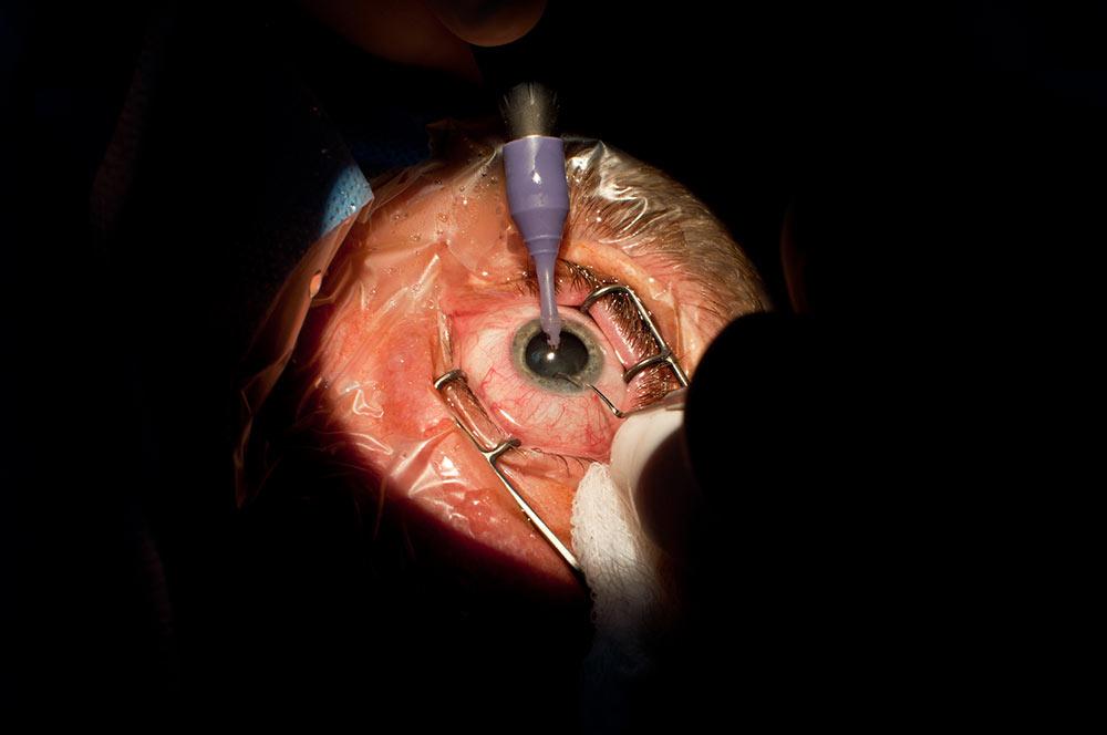 Operacija sive mrene