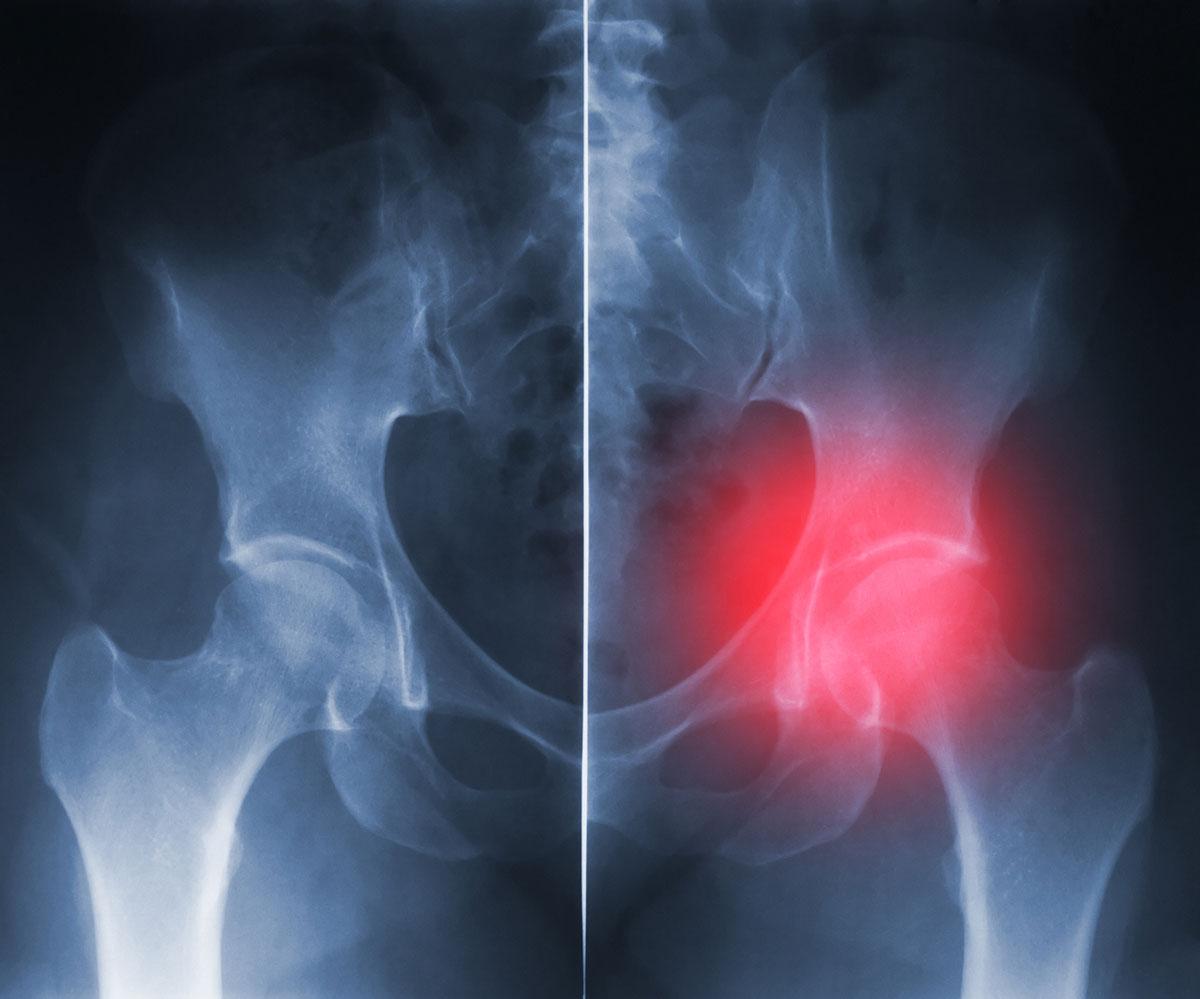 Operacija kolka