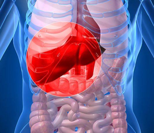 Vnetje jeter, zamaščena jetra