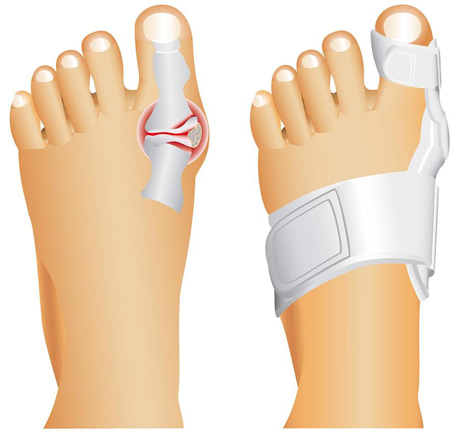 Izkrivljen nožni palec zdravljenje